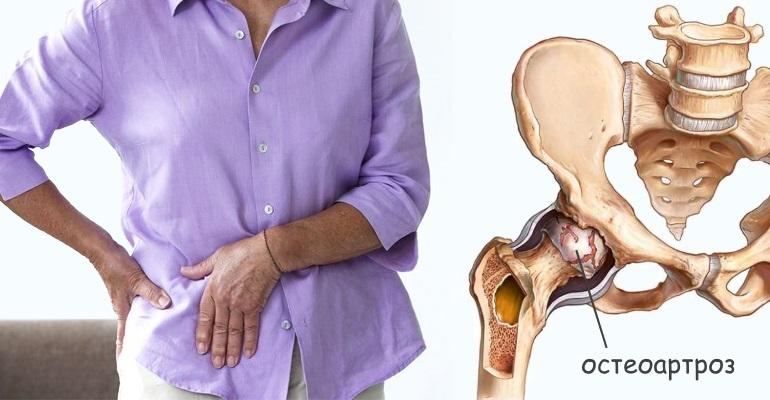 Остеоартроз - что это такое, диагностика и причины, симптомы и профилактика