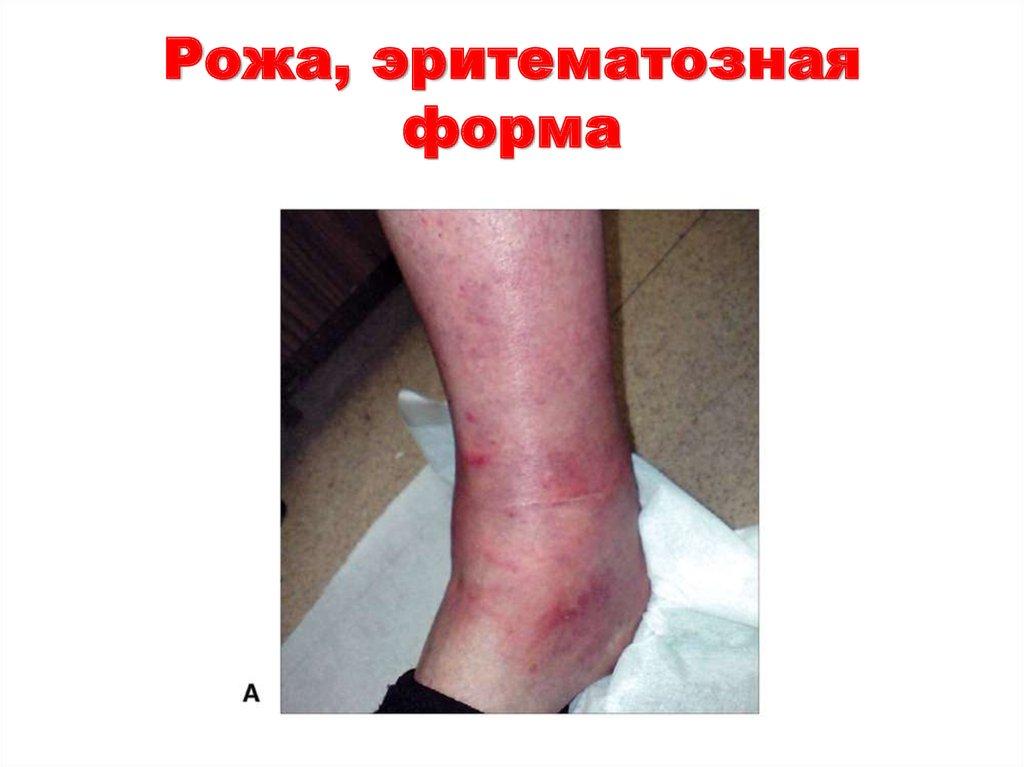 Рожа: симптомы, диагностика, лечение - диагноз.ру