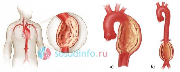 Причины и лечение атеросклероза сонных артерий