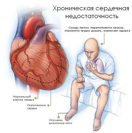 Кашель сердечного происхождения: возникновение, признаки, как лечить