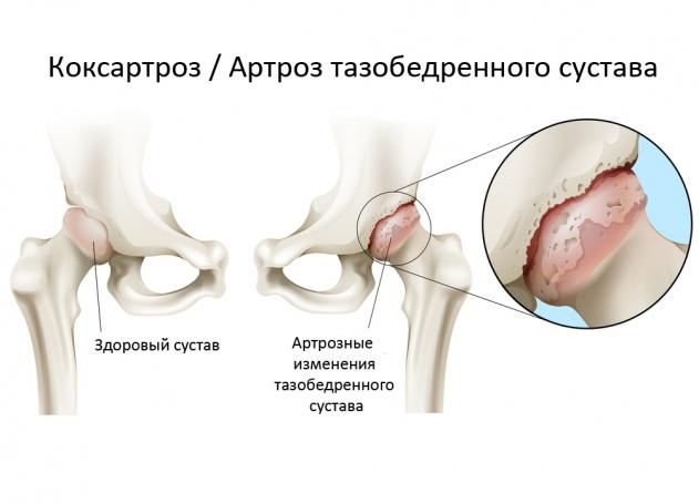 Коксартроз тазобедренного сустава 1 степени: симптомы и лечение, гимнастика