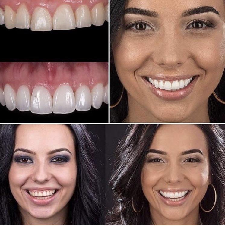 Что такое виниры? виниры на зубы: плюсы и минусы, фото до и после