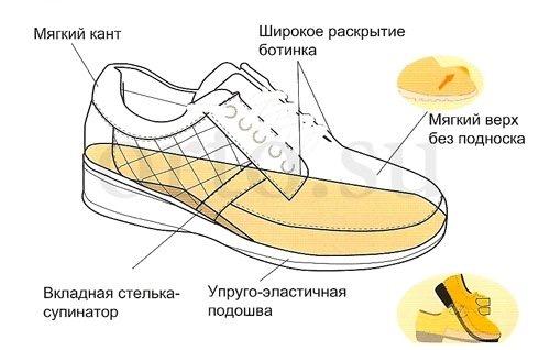 Супинаторы - определение. виды супинаторов