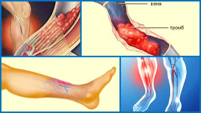 Тромбоз вен нижних конечностей: причины, симптомы и лечение