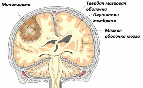 Менингиома головного мозга — причины, симптомы, способы лечения
