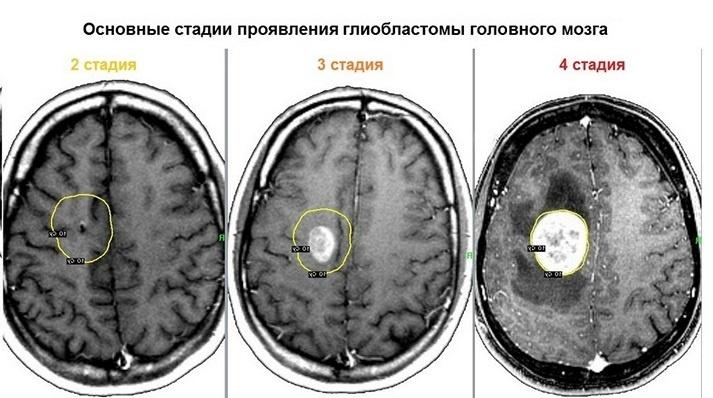 Глиобластома головного мозга: симптомы и лечение
