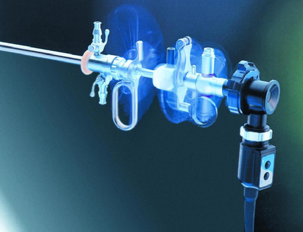 Гистерорезектоскопия - что это, показания, противопоказания