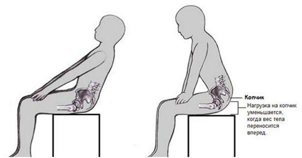 Особенности развития и лечения крестцово-копчиковой тератомы