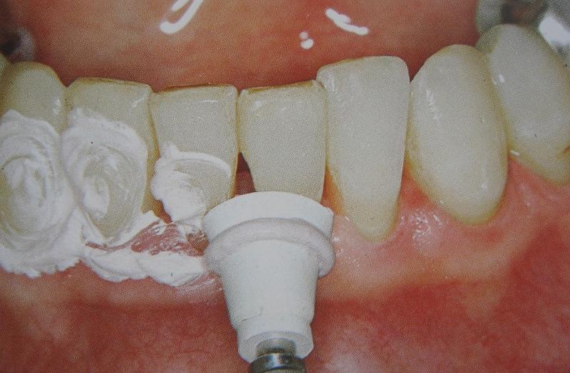 От чего появляется зубной камень: причины возникновения, симптомы и лечение