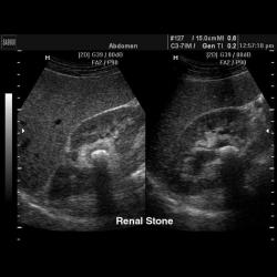 Узи брюшной полости - подготовка к исследованию