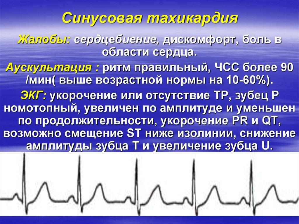 Синусовая тахикардия сердца что это такое — сердце