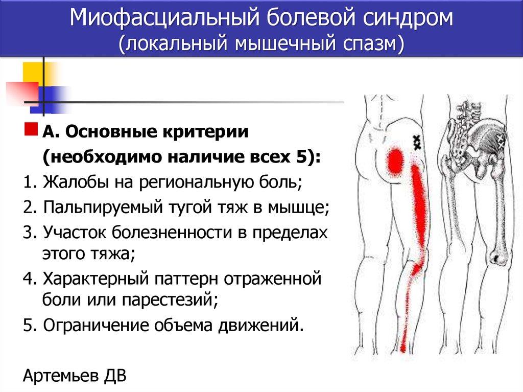 Мышечные спазмы: причины, лечение, симптомы, признаки, профилактика