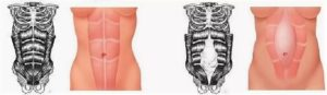 диастаз прямых мышц живота: как определить, упражнения, нужна ли операция