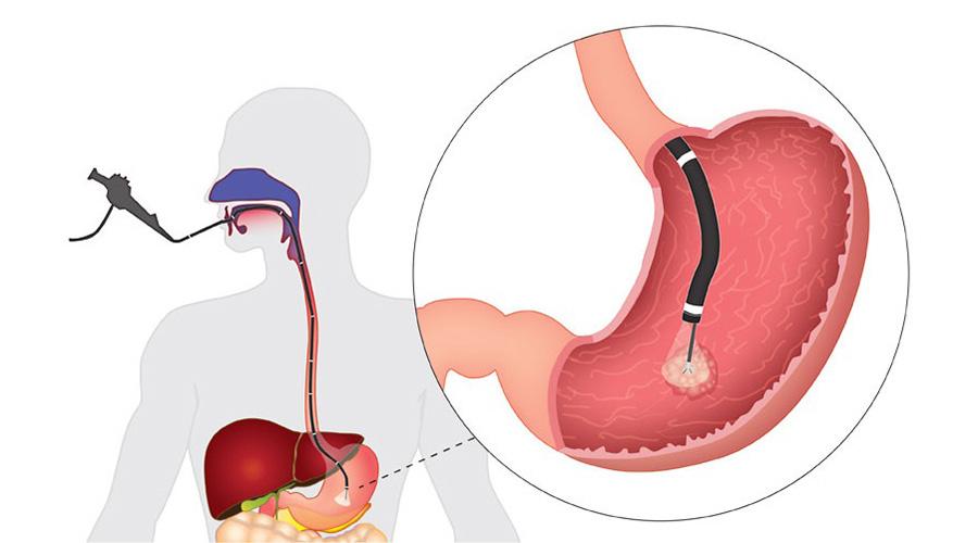 Фгдс для диагностики желудка: болезненная ненужность или важная необходимость?  плюс несколько особенно важных рекомендаций
