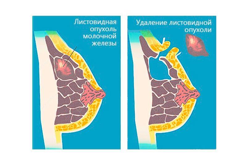 Фиброаденома молочной железы: что это такое, симптомы, лечение