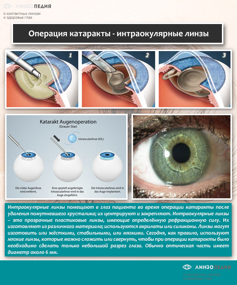 Что такое катаракта: все о болезни и эффективном лечении