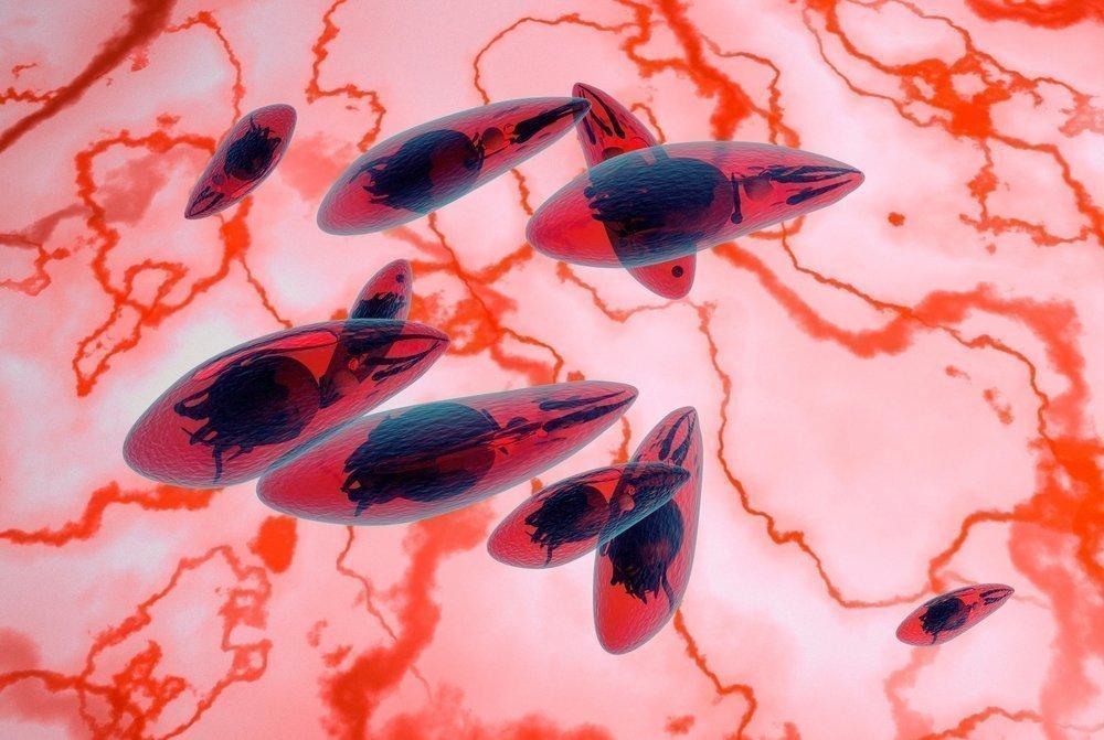 Токсоплазмоз у человека — симптомы, признаки и лечение, последствия. как заражаются токсоплазмозом и какие анализы сдавать?
