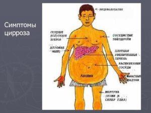 Цирроз печени и гепатит: причины, чем отличаются, прогноз
