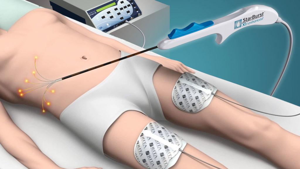 Радиочастотная абляция сердца: показания и противопоказания, этапы операции, отзывы кардиологов и пациентов + фото и видео