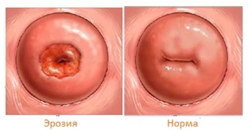 ⚕️ эрозия шейки матки: симптомы, причины, лечение и профилактика — клиника isida киев, украина