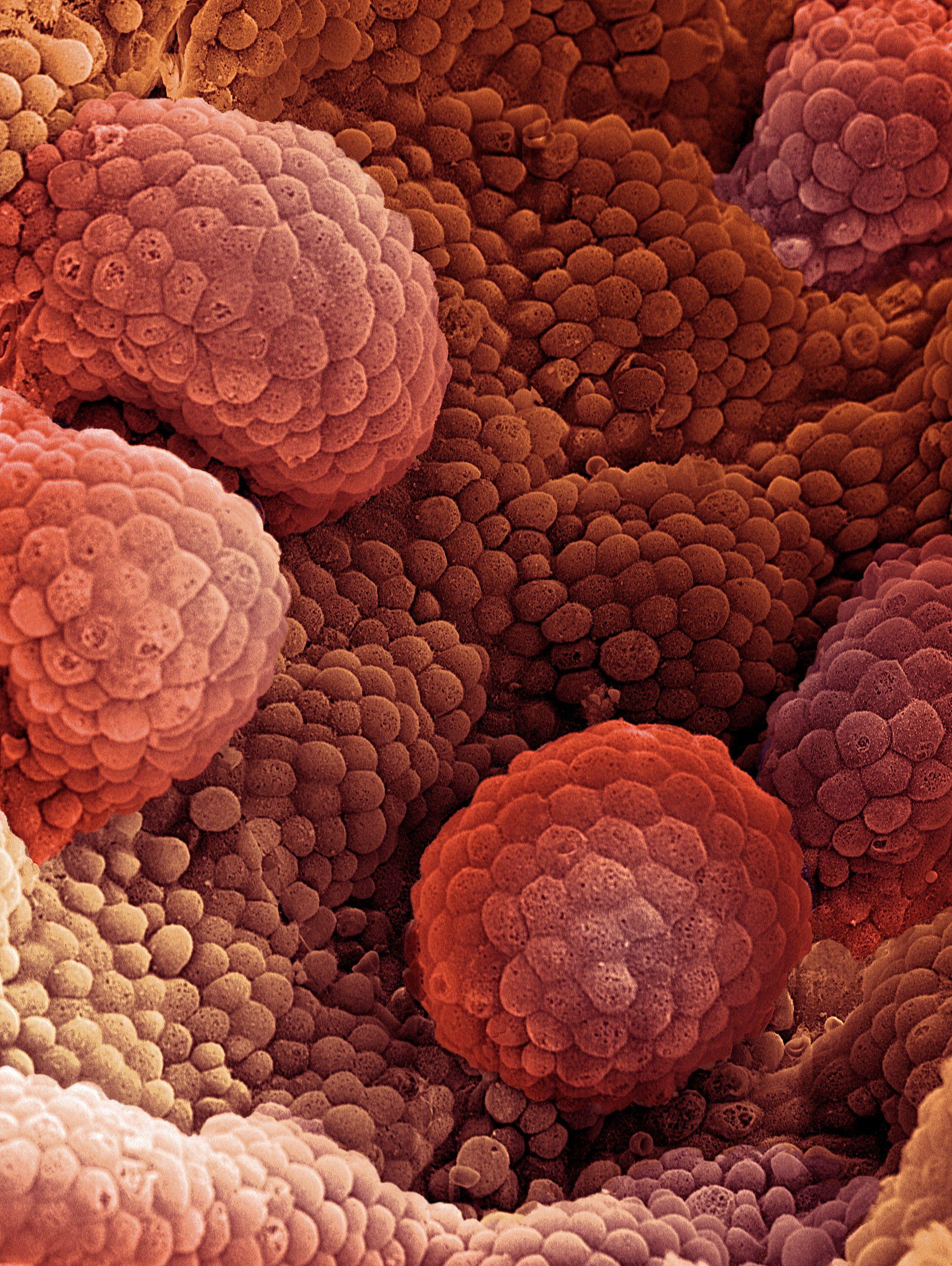 Что такое рак и как он возникает? — net-bolezniam.ru