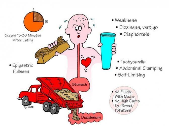 Демпинг-синдром после операции: развитие, признаки, лечение