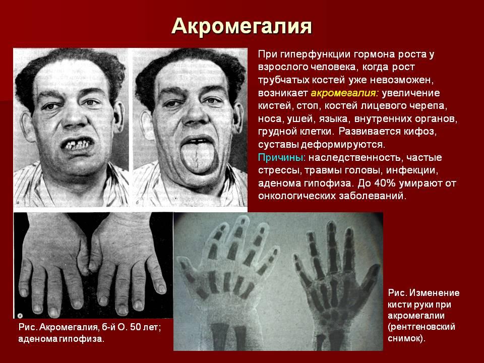 Акромегалия: причины, симптомы (фото признаков), лечение