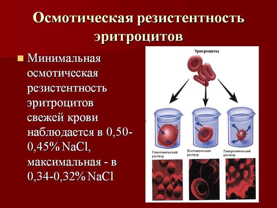 Гемолиз: что это такое, причины, признаки, лечение