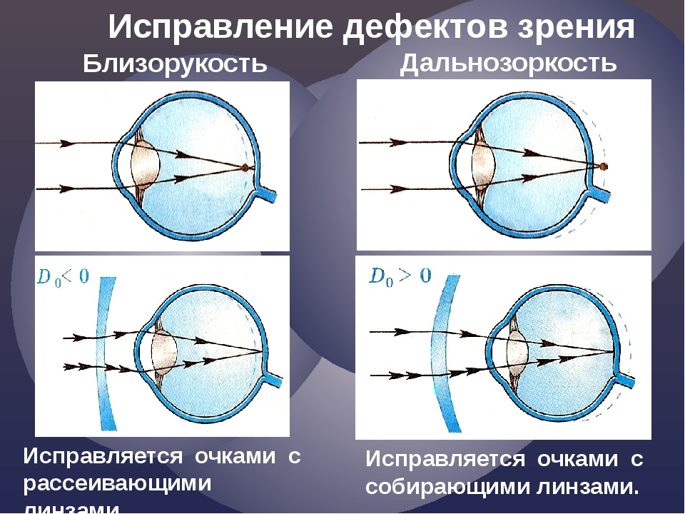 Что такое диоптрии в очках и линзах