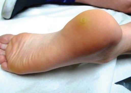 Шипица на ноге: лечение, фото шипички, как выглядит и как лечить