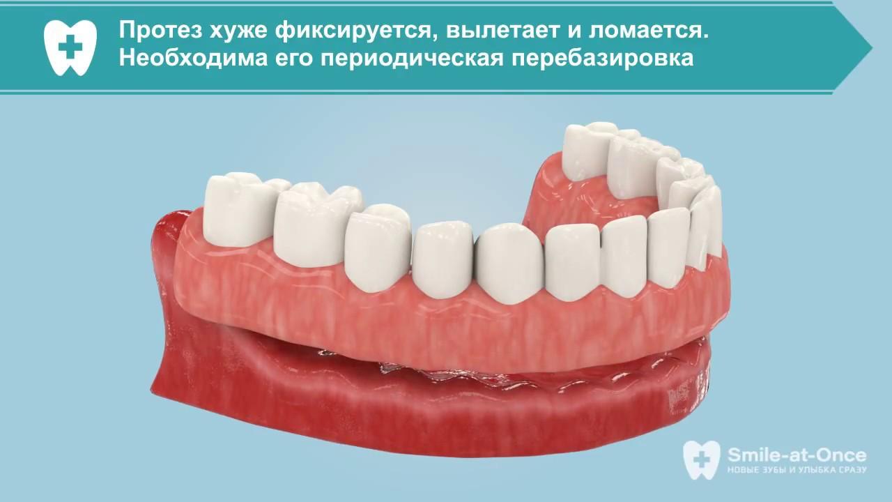 Способы протезирования зубов — современные методы
