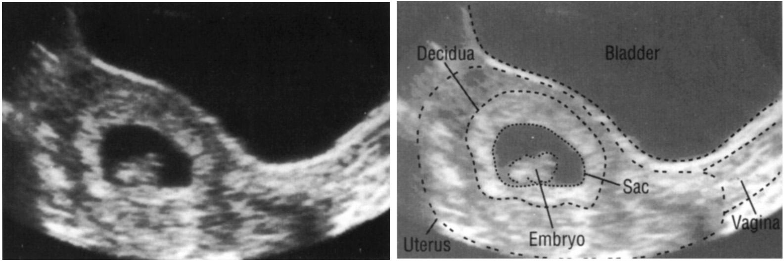 Анэмбриония
