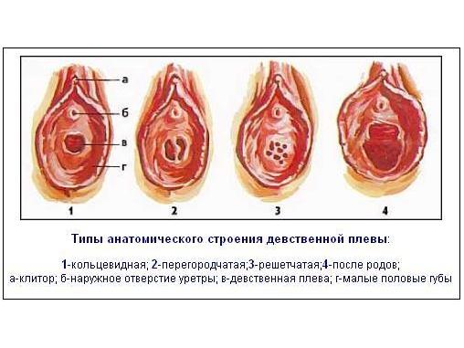 Хирургическая дефлорация: кому и зачем это нужно? - клиника «лиц» — современный медицинский центр в спб (спб)