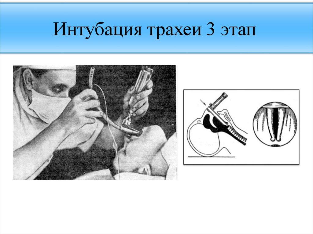 Что такое интубация тонкого кишечника