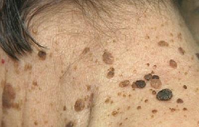 Кератома - фото, лечение, народные средства и удаление кератомы кожи на лице и теле