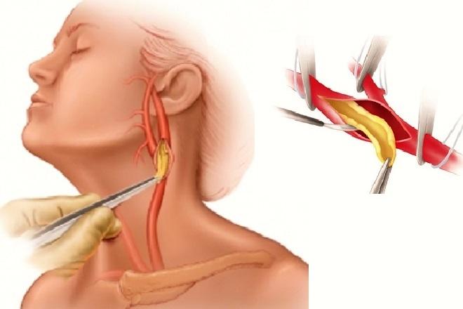 Дуплексное сканирование брахиоцефальных артерий что это такое - здоров.сердцем