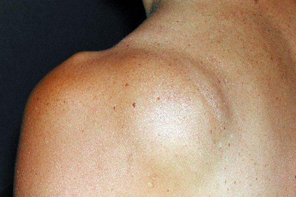 Атерома на голове, спине и лице: что это такое, причины и лечение