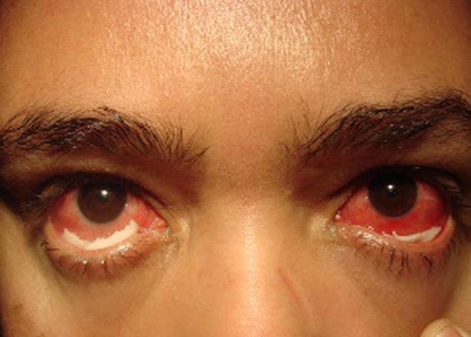 Какие симптомы и лечение гонореи у женщин?