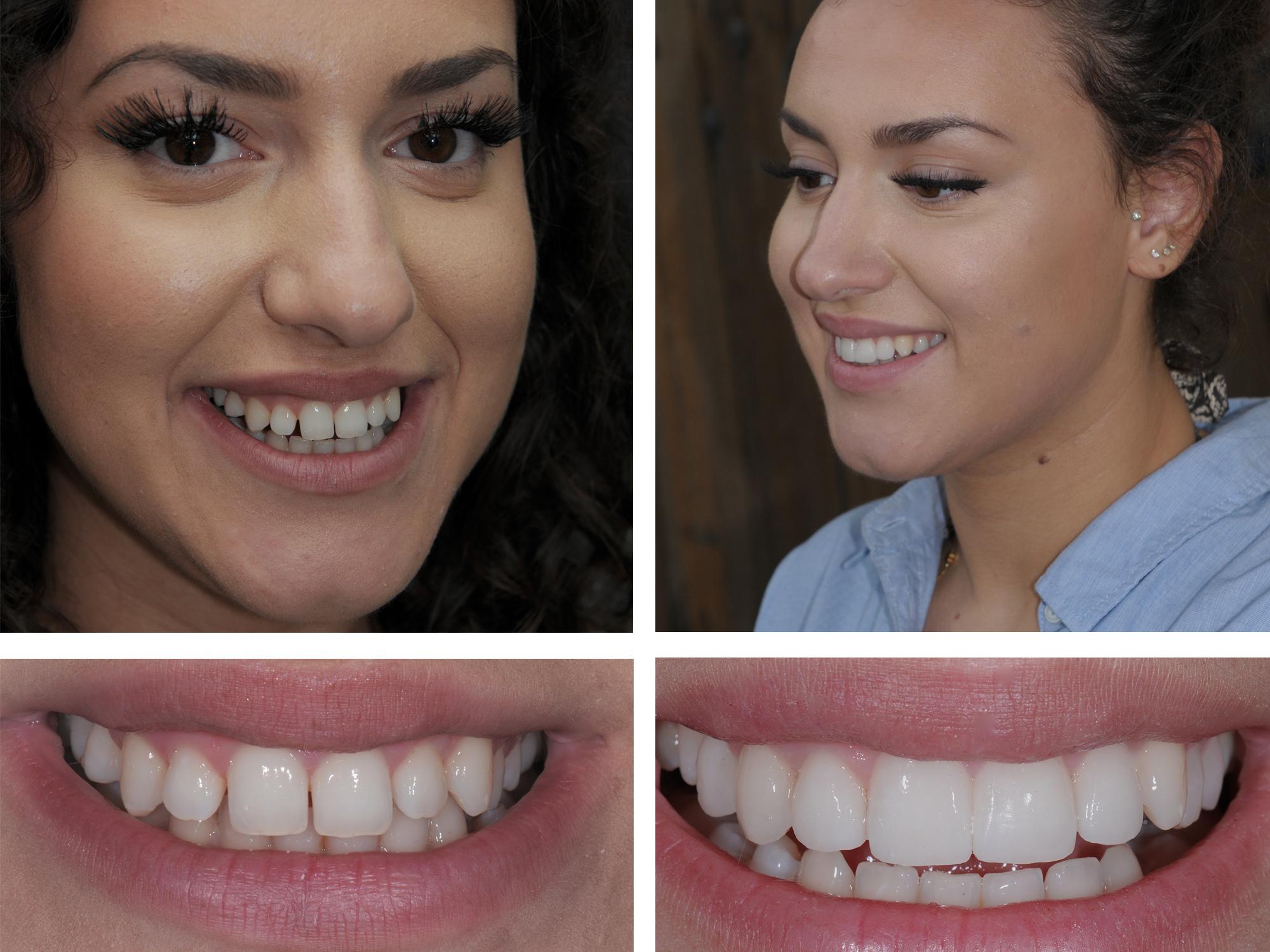 Что такое зубные виниры: преимущества, материалы и цена