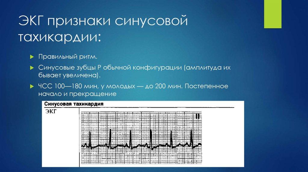 Опасна ли синусовая тахикардия | лечение сердца