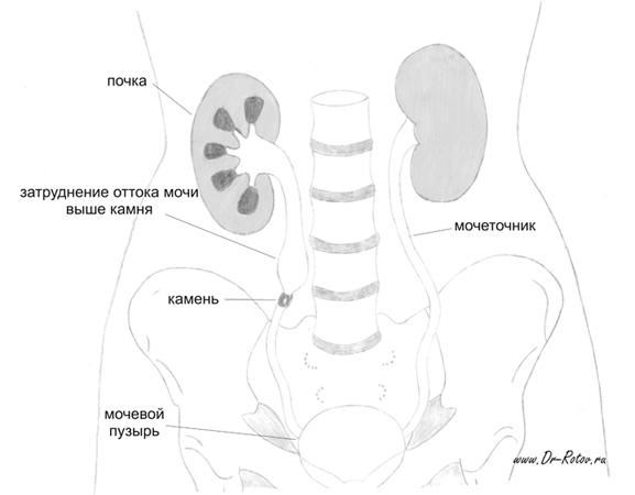 Мочевой пузырь: норма объема у мужчин и женщин, особенности строения органа