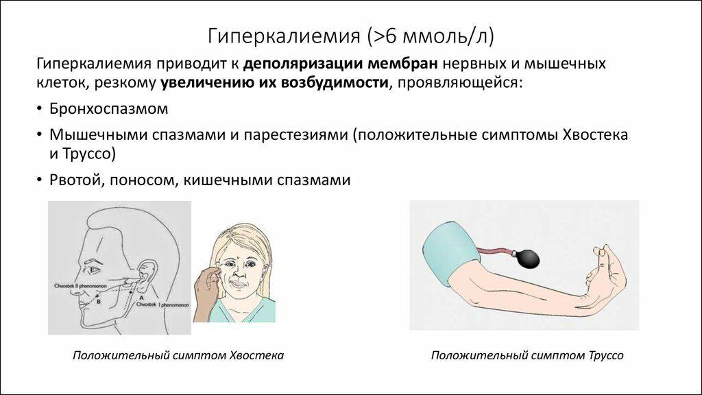 Гиперкалиемия – причины, симптомы, лечение