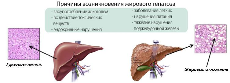 Гепатоз у женщин: симптомы, причины и лечение печени