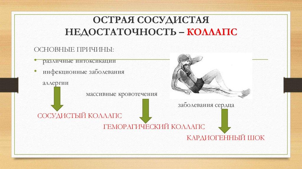 Ортостатический коллапс: причины и симптомы. как предупредить обморок у человека?