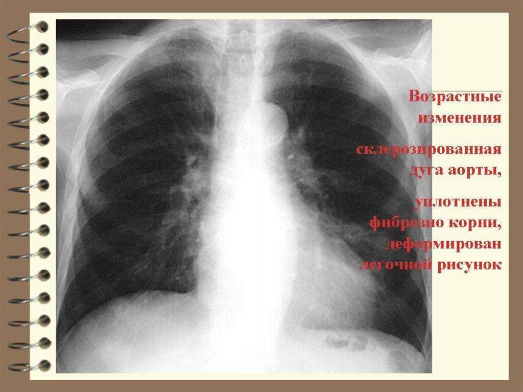 Особенности диффузного пневмосклероза: диагностика и лечение