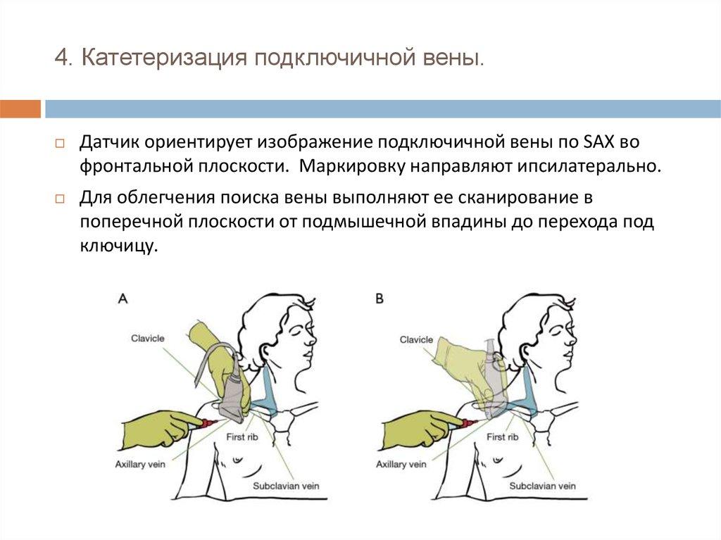 Центральный венозный катетер — википедия. что такое центральный венозный катетер