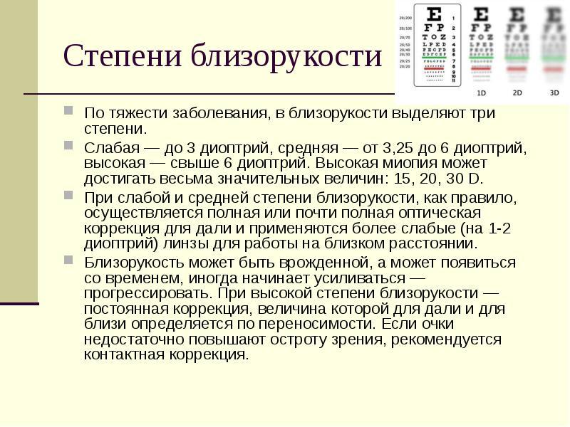 Cтепени миопии: классификация близорукости, стадии, таблица