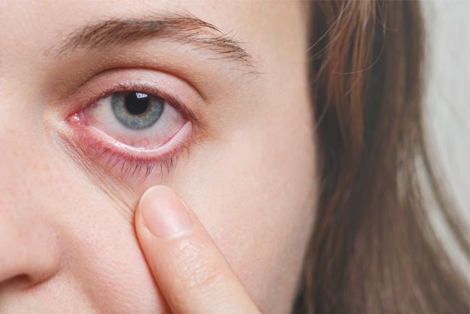 Куриная слепота: что это такое, причины гемералопии, из-за нехватки какого витамина может ухудшиться зрение в темноте или сумерках