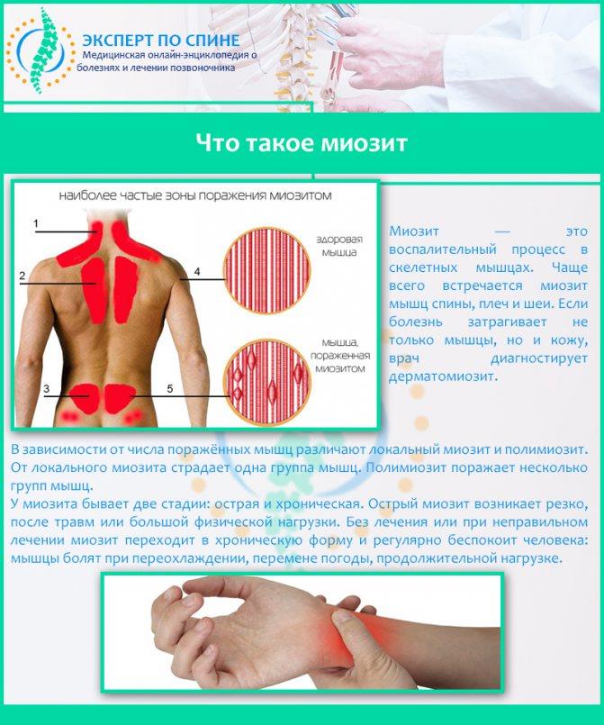 Миозит мышц: что это такое, симптомы и лечение медикаментами в домашних условиях