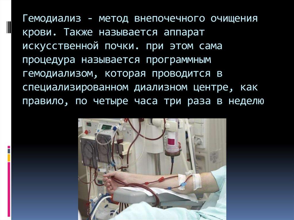 Гемодиализ                 экстракорпоральное очищение крови